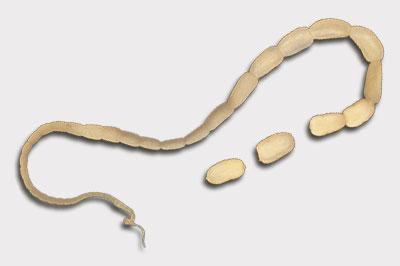 Gurkenkernbandwurm